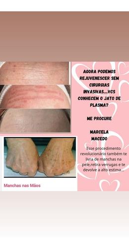 tratamento para pele flacidez e manchas
