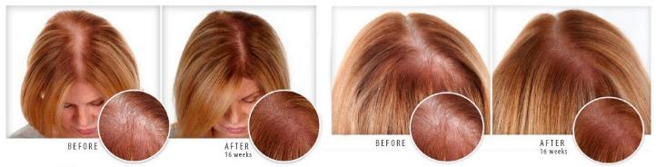 Vitaminas caida cabello mujer