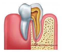tratamiento de conducto dental (odontologo uba) uniradicular
