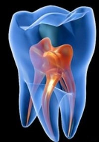 tratamiento de conductos, endodóncia mecanizada! sin dolor!