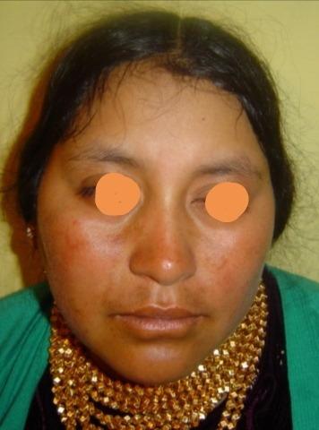 tratamiento de manchas paño negro belleza