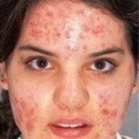 tratamiento efectivo, garantizado para acne