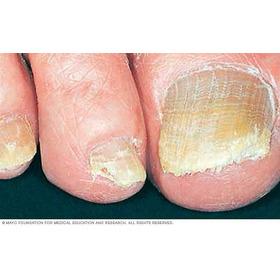 Tratamiento Para Onicomicosis (hongos En Uñas)