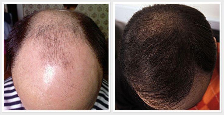 Resultado de imagen para tratamiento caida de cabello