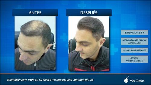 tratamientos capilares ya pelo - recuperación capilar
