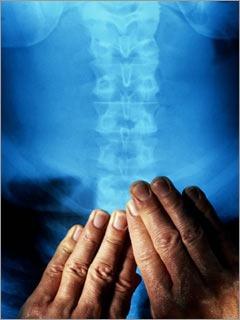 tratamientos de acupuntura, quiropraxia, osteopatía