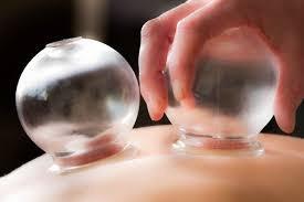 tratamientos de acupuntura y moxibustion