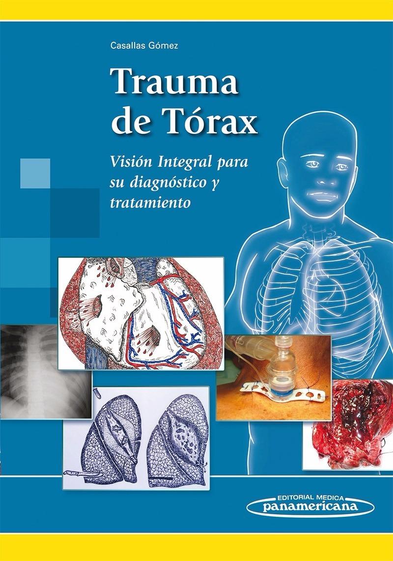 Trauma De Tórax Casallas Gómez En Cuotas,envios Todo El Pais ...