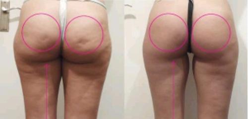 ultracavitacion . quema grasa y celulitis!