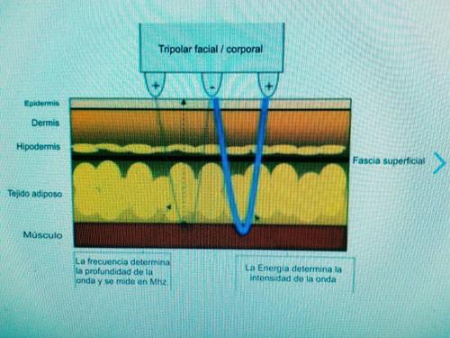 ultracavitación +radiofrecuencia multipolar + presoterapia