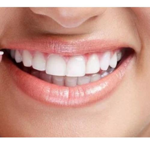 urgencias odontogicas.placas de bruxismo-ortodoncia-implant