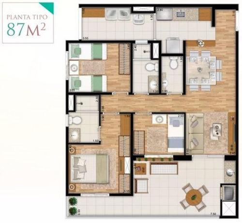 varanda ipiranga (zs033) 2 suites 2 vagas    oportunidade