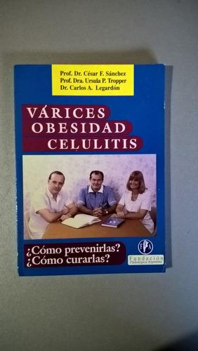 várices obesidad celulitis - sánchez - tropper - legardón