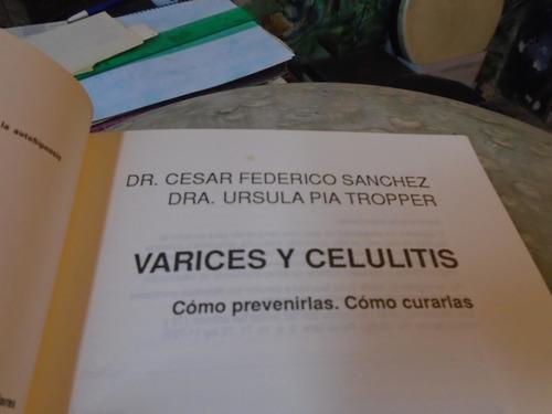 varices y celulitis como prevenirlas como curarlas sanchez