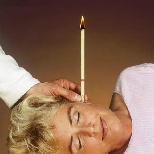velas conoterapia 100 pzs cera natural limpieza de oídos