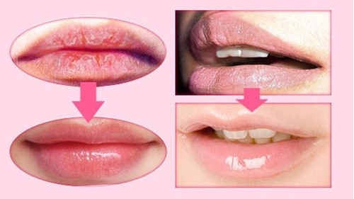 velos de colageno labios sensuales caja  x 6
