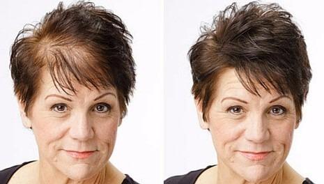 como disfarçar calvicie feminina