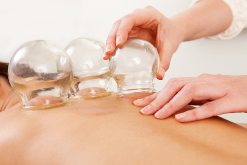 ventosas y terapia neural para dolores, medicina alternativa