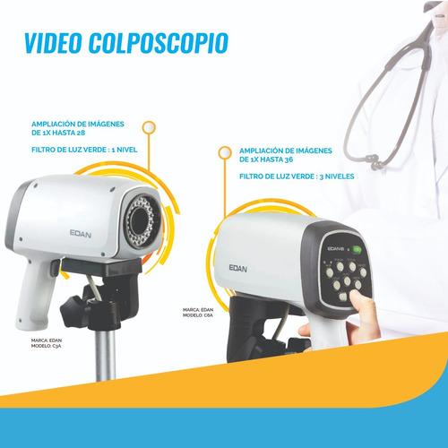 vídeo colposcopio  digital envió gratis
