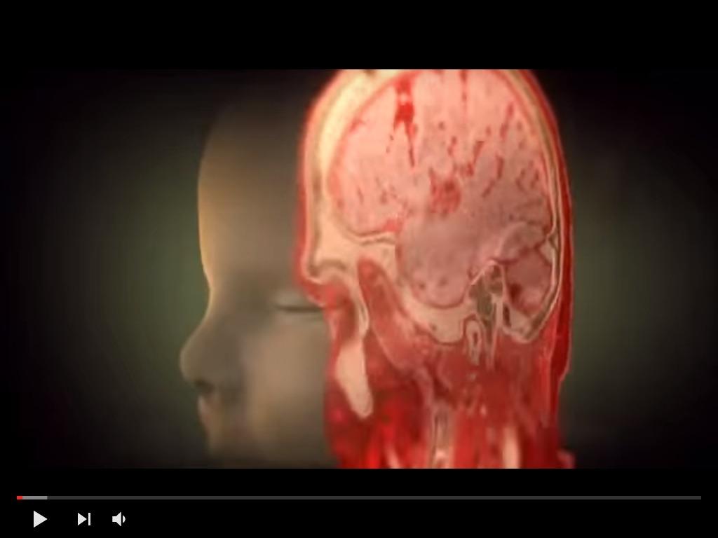 Video Documental Viaje Al Interior Del Cuerpo Humano - $ 199,00 en ...