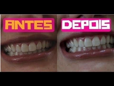 Whitemax Clareador Dental 3 Potes Original Lacrado R 109 90 Em