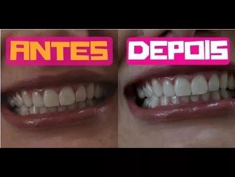 Whitemax Clareador Dental R 49 90 Em Mercado Livre