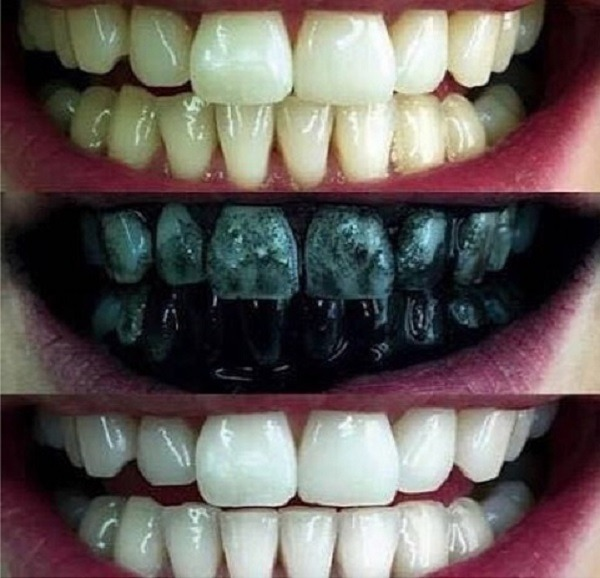 Whitemax Clareador Dental Carvao Ativado 100 Original R 29 70
