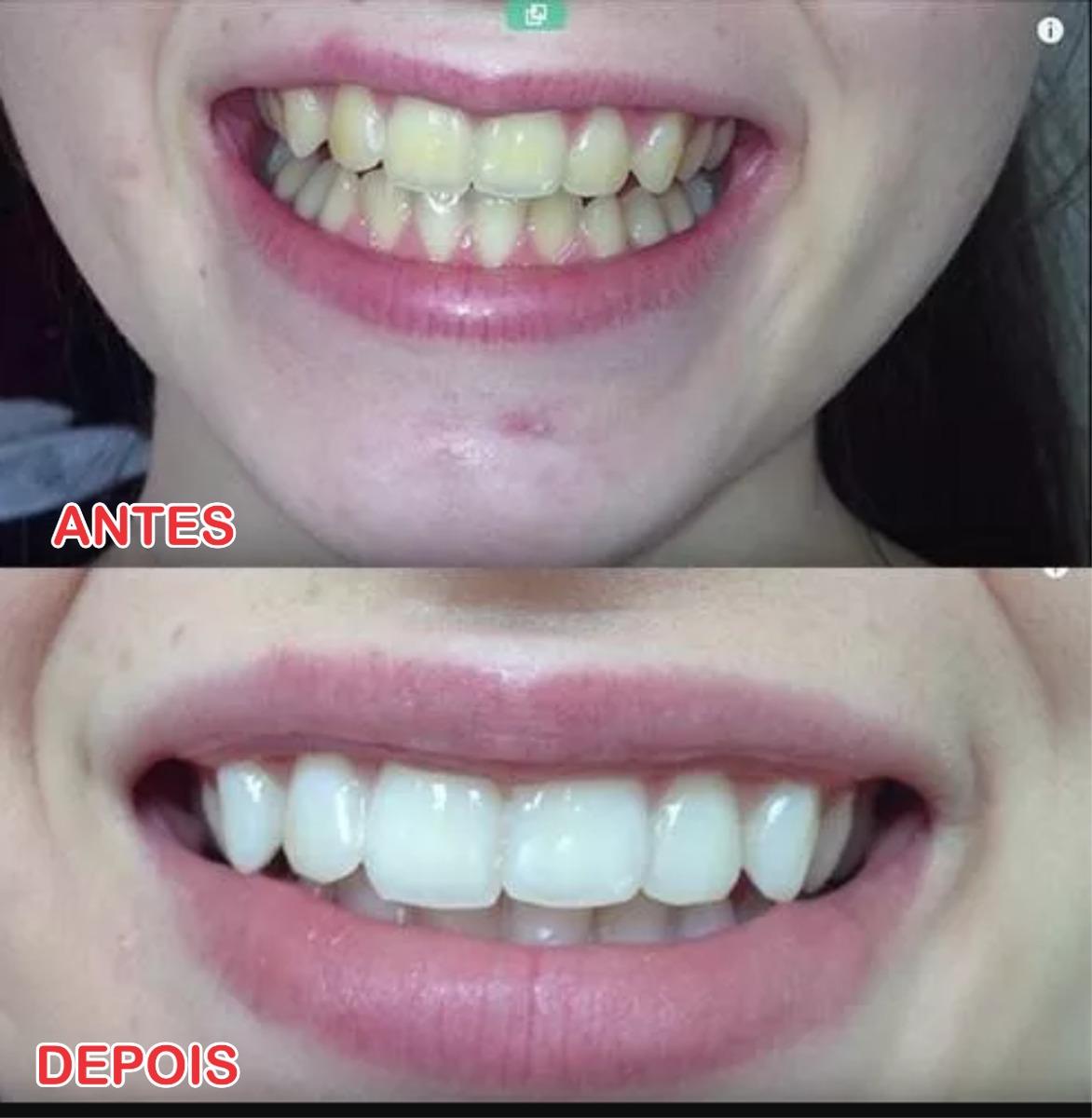 Whitening Strips Fita Clareador Branqueamento Dentes R 5 00 Em